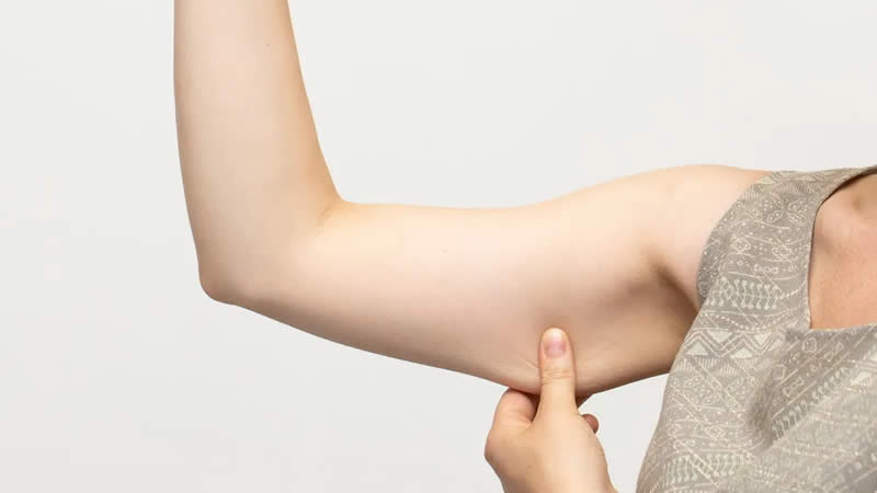 Fight Harmful Effects of Weight Loss on your Skin